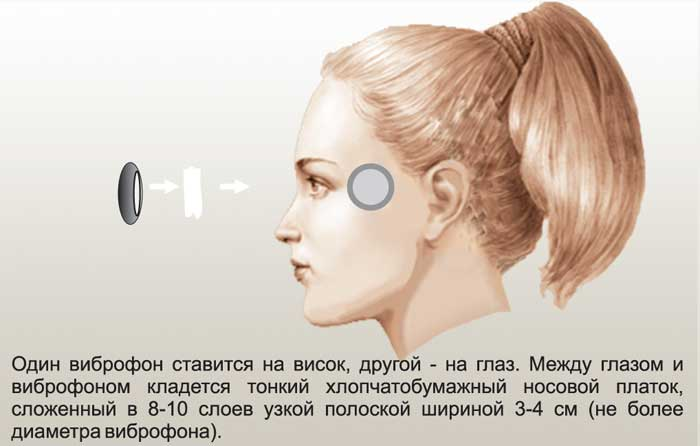 Аппарат Витафон (Vitafon). Что лечит, инструкция по применению, цена