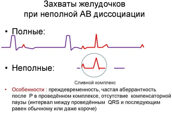 АВ (атриовентрикулярная) диссоциация на ЭКГ. Что это значит, признаки у ребенка, взрослого