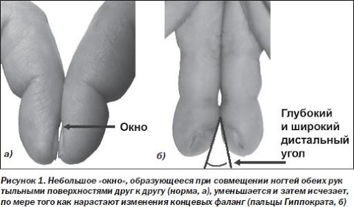 Пальцы-барабанные палочки, симптом Ногти Гиппократа. Причины, фото