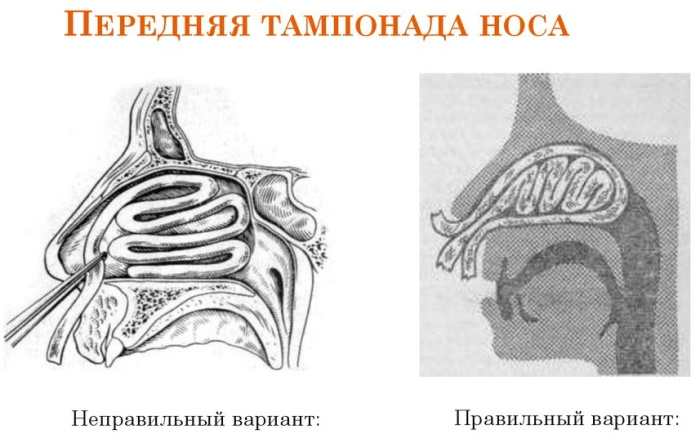Передняя тампонада носа. Алгоритм действий, показания, как выполняется