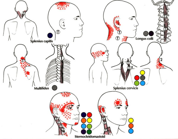 Прострелы в голове, шум. Причины и лечение