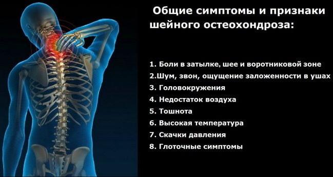 Шейный хондроз. Симптомы и лечение, препараты