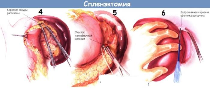 Синдром Вискотта-Олдрича. Что это такое, как проявляется, лечение