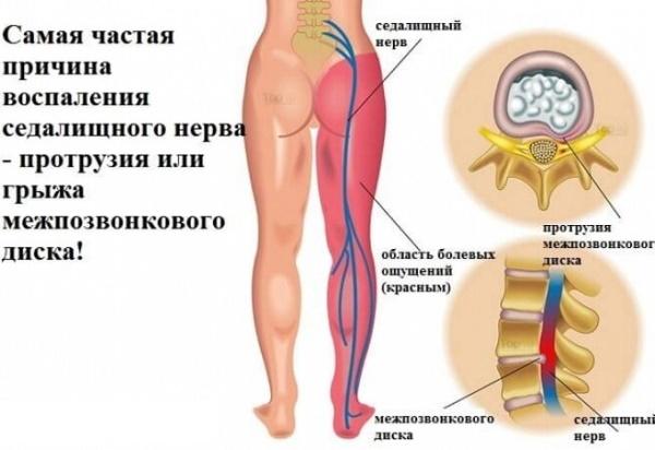 Защемление нерва в пояснице. Симптомы у женщин, лечение